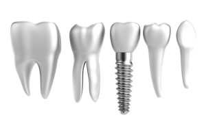 Tooth Loss in Yonkers